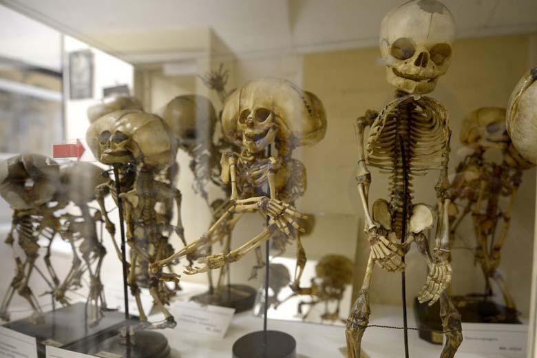 Экспонаты - Патологоанатомический музей в Вене